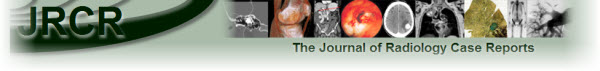 The Journal of Radiology Case Reports