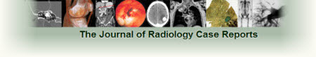The Journal of Radiology Case Reports - interactive Radiology case reports and Radiology review articles