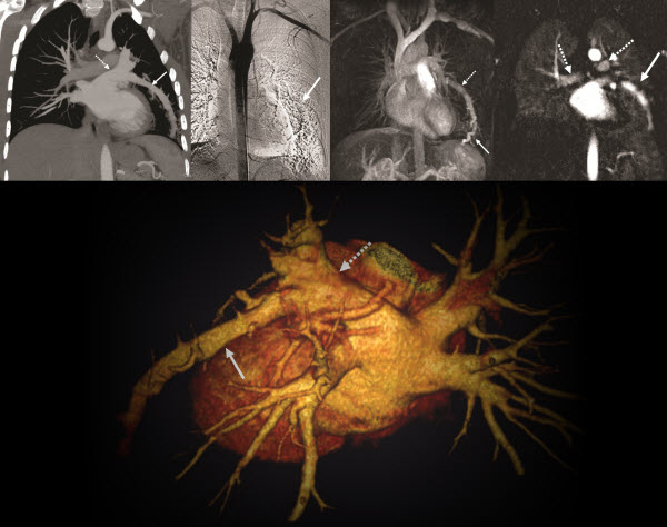 Free full text article: A Complex Pulmonary Vein Varix -  Diagnosis with ECG gated MDCT, MRI and Invasive Pulmonary Angiography