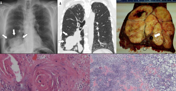 Free full text article: Bronchial carcinosarcoma