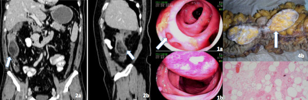 Free full text article: Colonic Angiolipoma - A rare finding in the gastrointestinal tract. Case Report and review of literature.