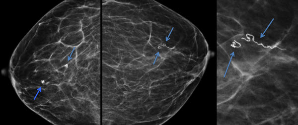 Free full text article: Dracunculiasis of the Breast:  Radiological Manifestations of a Rare Disease