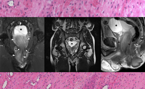Free full text article: Radiographic diagnosis and differentiation of an aggressive angiomyxoma in a male patient