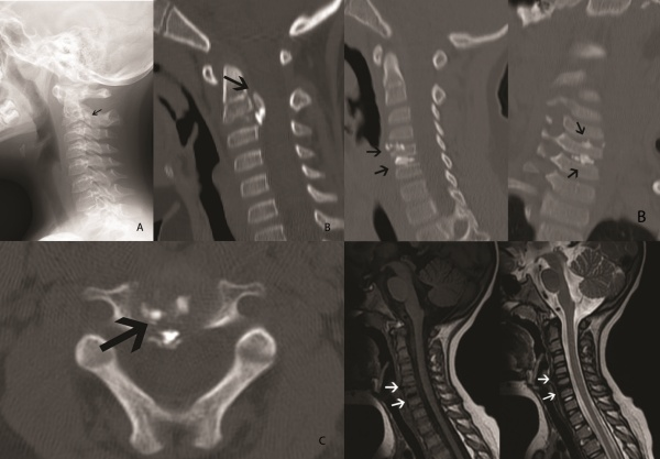 Free full text article: Children Presenting with Calcified Disc Herniation: A Self-Limiting Process.
