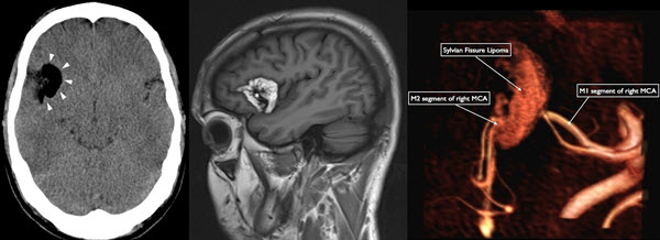 Free full text article: A symptomatic Sylvian fissure lipoma  in a post-traumatic patient