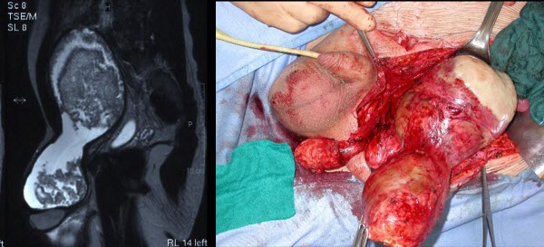 Free full text article: A giant heterogeneous abdominoscrotal mass: haemorrhagic hydrocele