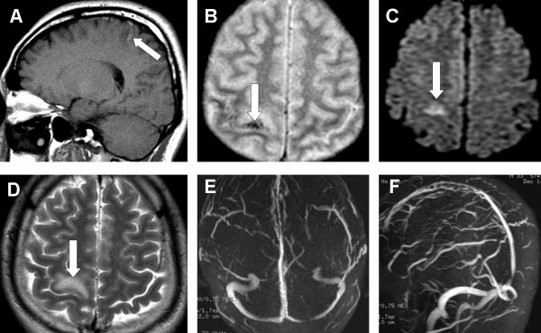 Free full text article: Isolated Cortical Vein Thrombosis - The Cord Sign