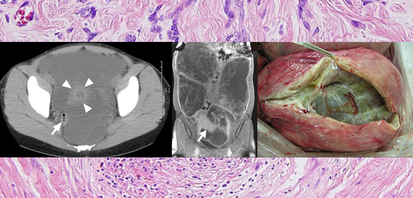 Free full text article: Giant cystic leiomyoma of the uterus occupying the retroperitoneal space