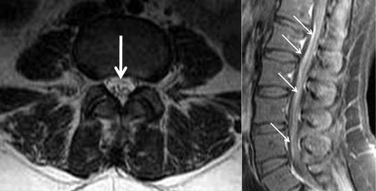 Free full text article: Spinal MRI Findings of Guillain-Barré Syndrome
