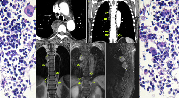 Free full text article: Adrenal and Extra-adrenal Myelolipomas -  A Comparative Case Report