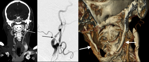 Free full text article: Carotid Stent Fracture from Stylocarotid Syndrome
