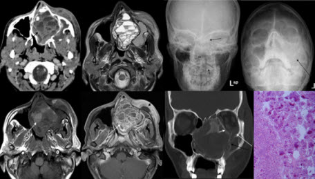 Free full text article: Cemento-ossifying Fibroma Of Paranasal Sinus Presenting Acutely  As Orbital Cellulitis