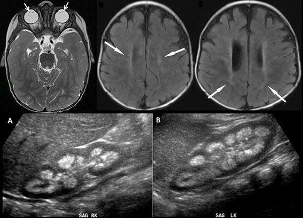 Free full text article: Neuroimaging and renal ultrasound manifestations of Oculocerebrorenal syndrome of Lowe