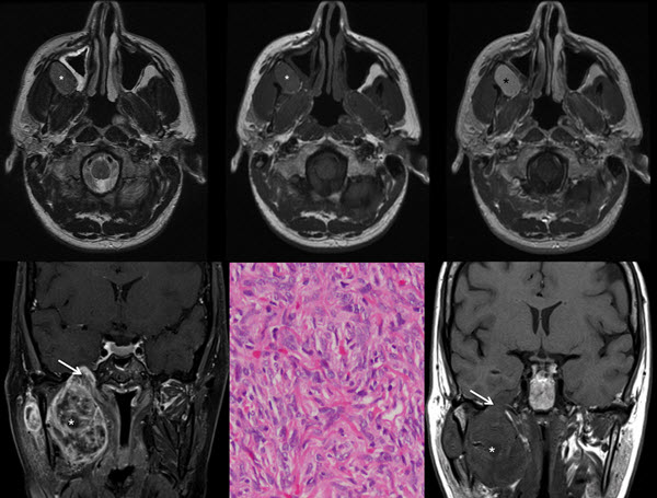 Free full text article: Solitary Fibrous Tumor of the Infratemporal Fossa