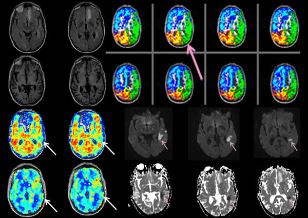 Free full text article: Correlating Hemodynamic Magnetic Resonance Imaging with high-field Intracranial Vessel Wall Imaging in Stroke