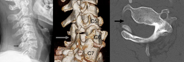 Free full text article: The role of CT imaging in the congenital absence of a cervical spine pedicle: a case report and review of the literature