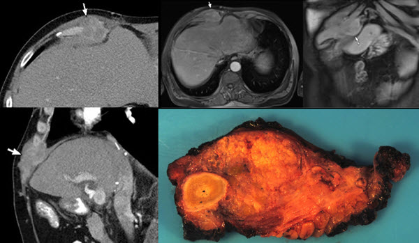 Free full text article: Seeding of the Rectus Sheath with Hepatocellular Carcinoma after Image Guided Percutaneous Liver Biopsy Using Coaxial Biopsy Needle System