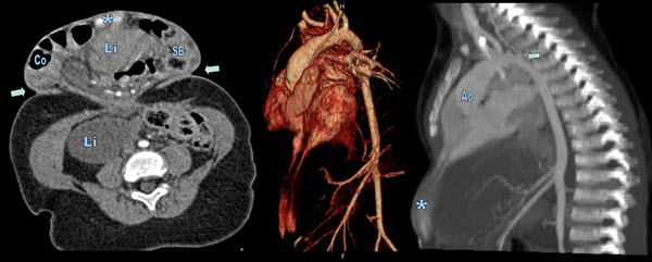 Free full text article: Pentalogy of Cantrell with Ectopia Cordis:  CT Findings