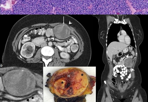 Free full text article: Synovial sarcoma of the abdominal wall: Imaging findings and review of the literature
