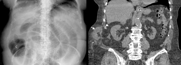 Free full text article: Incarcerated Grynfeltt-Lesshaft Hernia