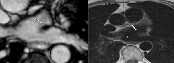 Free full text article: The Coumadin Ridge: An Important Example of a Left Atrial Pseudotumour demonstrated by Cardiovascular Magnetic Resonance Imaging
