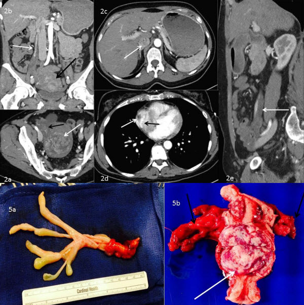 Free full text article: Intravenous leiomyomatosis disguised as a large deep vein thrombosis