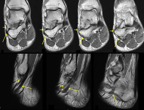 Free full text article: Peroneus Brevis Tendon Variant Insertion on the Calcaneus