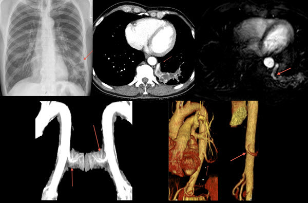 Free full text article: Bronchopulmonary sequestration in a 60 year old man