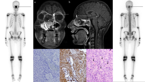 Free full text article: Primary osteogenic osteosarcoma of the ethmoid sinus in an adolescent: case report