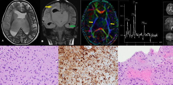 Free full text article: Bilateral Thalamic and Right Fronto-temporo-parietal Gliomas in a 4 Years Old Child Diagnosed by Magnetic Resonance Imaging