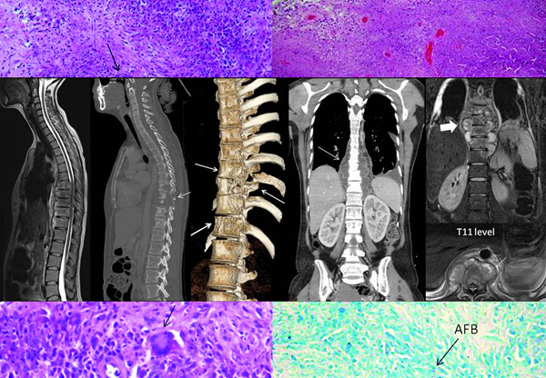Free full text article: Atypical Imaging Features of Tuberculous Spondylitis: Case Report with Literature Review