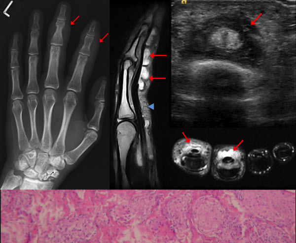 Free full text article: Sarcoid tenosynovitis, rare presentation of a common disease. Case report and literature review