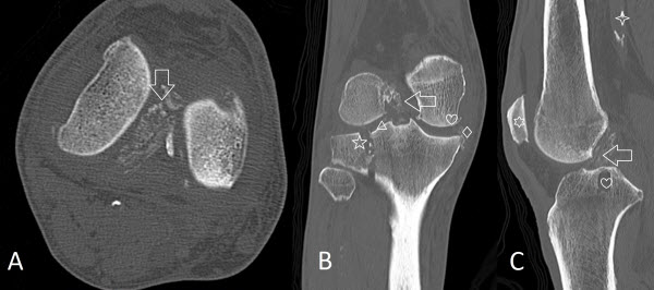 Free full text article: Incidental Anterior Cruciate Ligament Calcification: Case Report