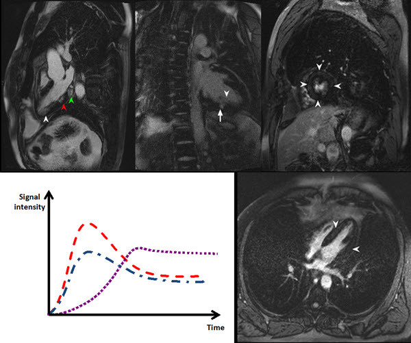 Free full text article: Delayed Myocardial Enhancement in Cardiac Magnetic Resonance Imaging