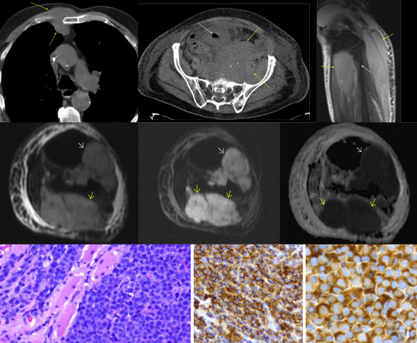 Free full text article: Apparent diffusion coefficient map of a case of extramedullary plasmacytoma