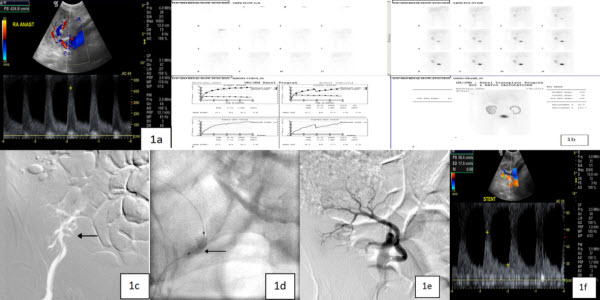 Free full text article: Successful technical and clinical outcome using a second generation balloon expandable coronary stent for transplant renal artery stenosis: Our experience