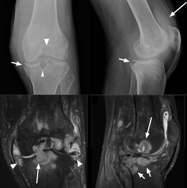 Free full text article: Mycobacterium kansasii causing chronic monoarticular synovitis in a patient with HIV/AIDS