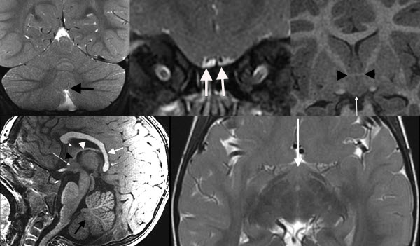 Free full text article: MR Imaging Findings in  Xp21.2 Duplication Syndrome