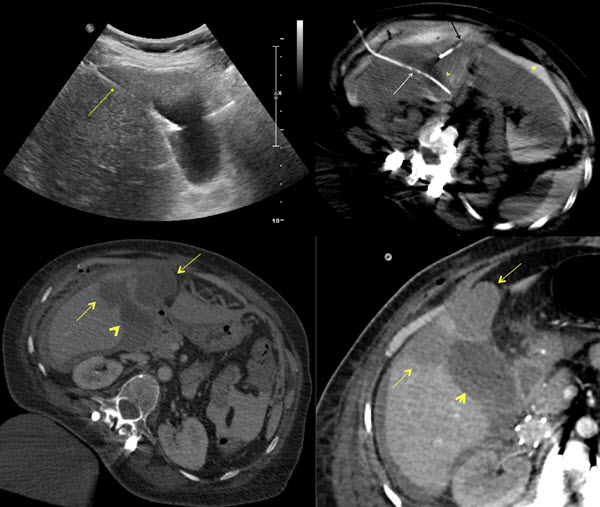 Free full text article: Percutaneous Cholecystostomy and Hydrodissection in Radiofrequency Ablation of Liver Subcapsular Leiomyosarcoma Metastasis Adjacent to the Gallbladder: Protective Effect.