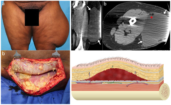 Free full text article: Delayed Presentation of a  Chronic Morel-Lavallée Lesion