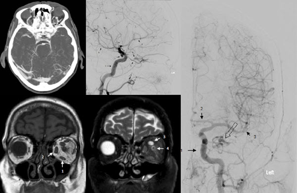Free full text article: Optic Nerve Sheath Dural Arteriovenous Fistula Misdiagnosed As A Carotid Cavernous Fistula