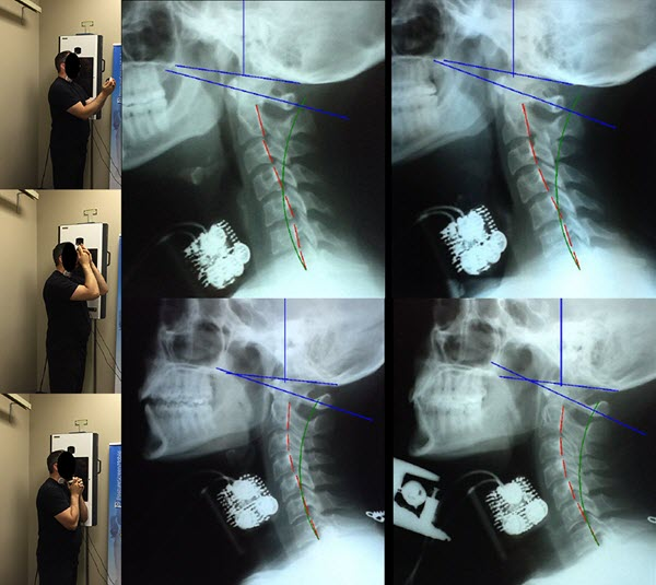 Impact of Isometric Contraction of Anterior Cervical Muscles on Cervical Lordosis