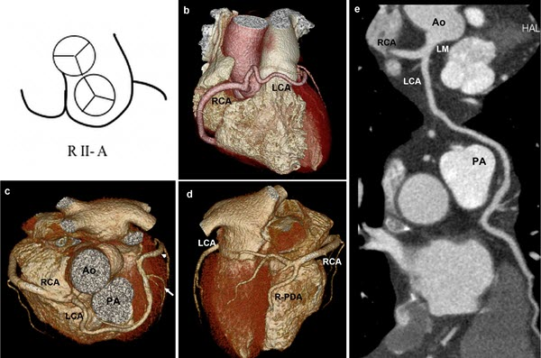 Free full text article: Single coronary artery arising from the right sinus of Valsalva presenting with chest pain