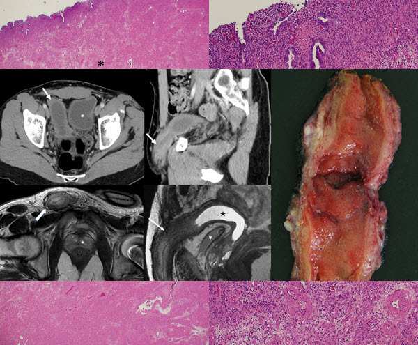 Radiological Findings in Persistent Müllerian Duct Syndrome: Case Report and Review of Literature