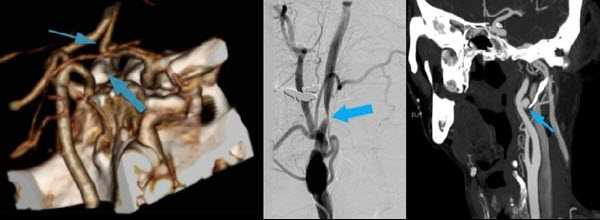 Free full text article: Vascular Eagle`s Syndrome: Two Cases Illustrating Distinct Mechanisms of Cerebral Ischemia