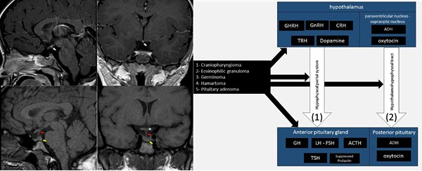 Free full text article: The Missing Link: A Case of Absent Pituitary Infundibulum and Ectopic Neurohypophysis in a Pediatric Patient with Heterotaxy Syndrome