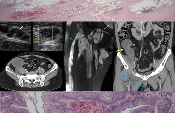 Free full text article: Adenocarcinoma of the Appendix Presenting as a Palpable Right Thigh Mass