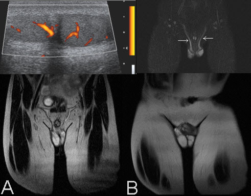 Free full text article: Supernumerary Testis
