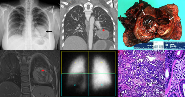 Free full text article: The Radiologic and Pathologic Diagnosis of Biphasic Pulmonary Blastoma