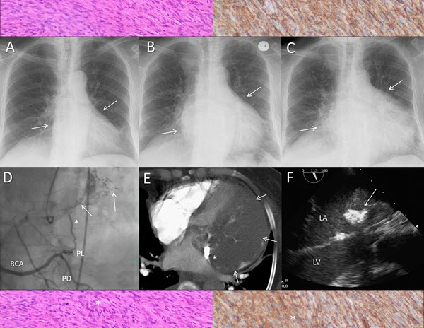 Free full text article: Multimodal Imaging for the Assessment of a Cardiac Mass - A Case of Primary Cardiac Sarcoma
